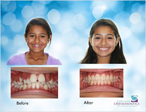 braces befpre and after