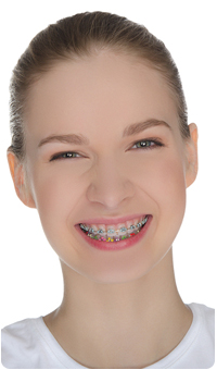 What Your Braces Rubber Band Color Says About You By Orthodontist Near Belton M O