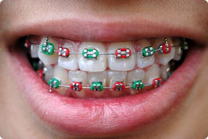 harrisonville mo orthodontist what does your braces rubber band color say about you