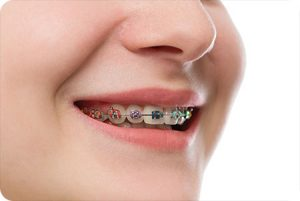 kansas city mo orthodontist how much do braces cost