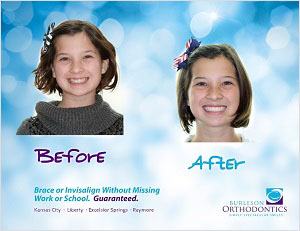 braces and invisalign before and after