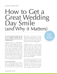 How To Get a Great Wedding Day Smile