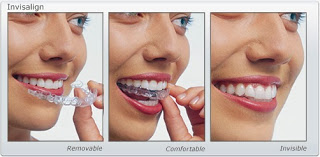more questions about invisalign