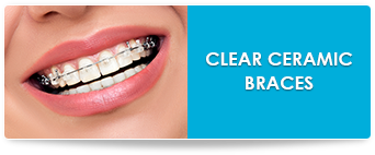 clear ceramic braces link