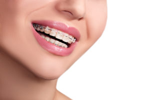 invisalign independence mo