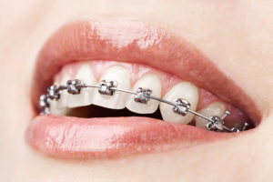 why are braces important from our kansas city mo orthodontist