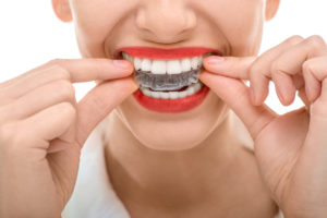 will invisalign correct an underbite from liberty mo orthodontist