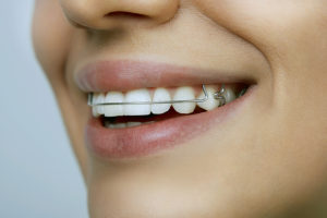 orthodontist-in-raymore