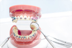 orthodontist kansas city ks